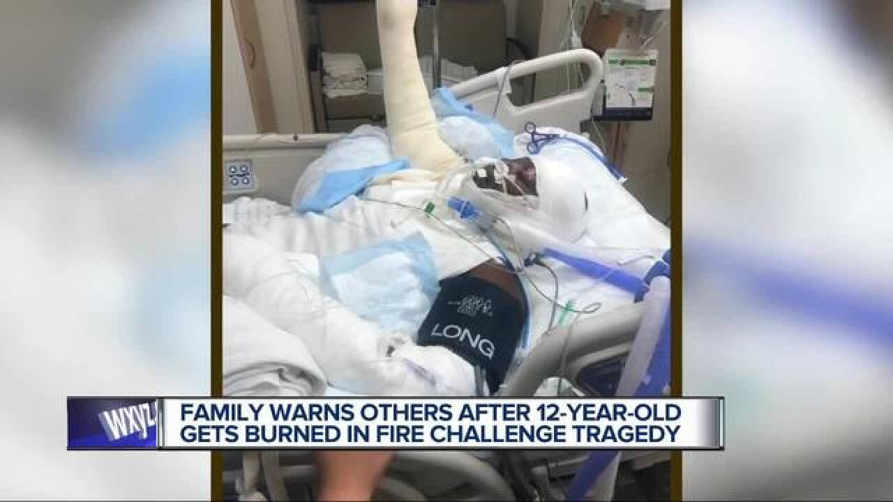 """A 12-year-old Detroit girl has burns on 49 percent of her body after doing the """"fire challenge"""""""