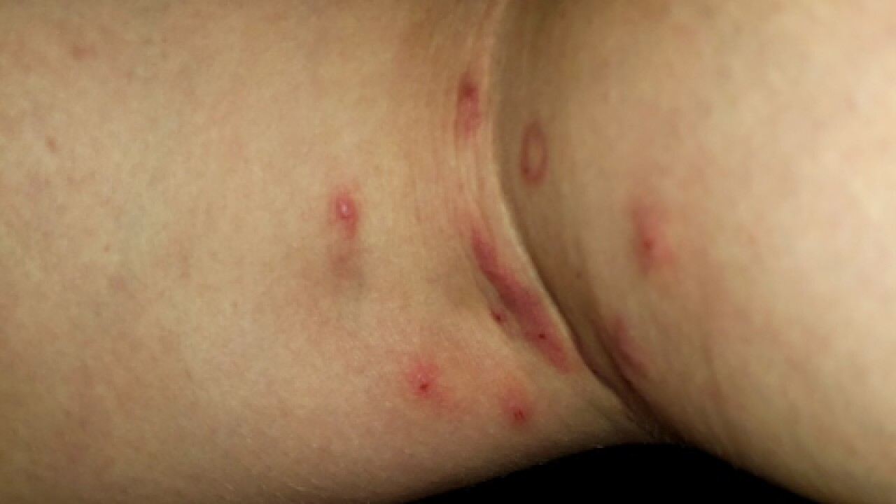 Woman says she was bitten by bugs during flight