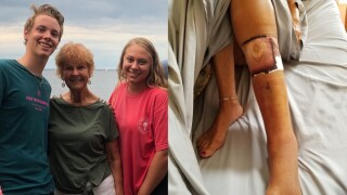 Florida woman dies from flesh-eating bacteria after visiting popular beach