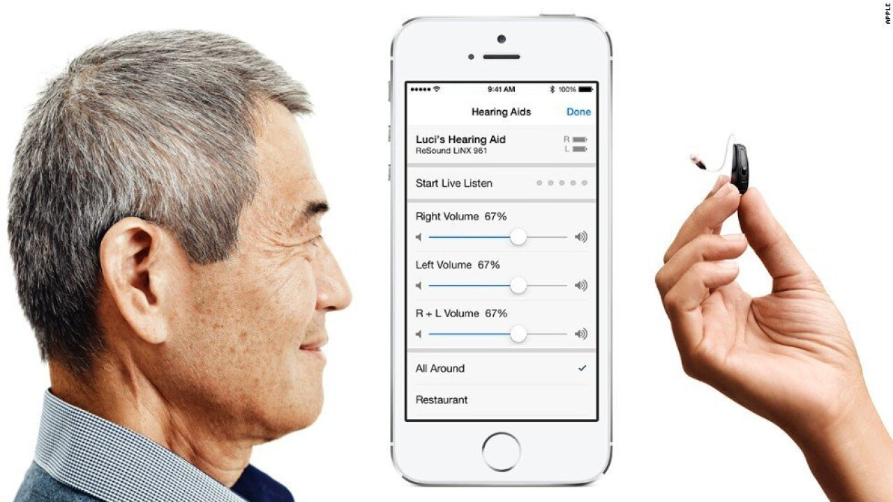 Hearing implants can now stream sound right from an iPhone