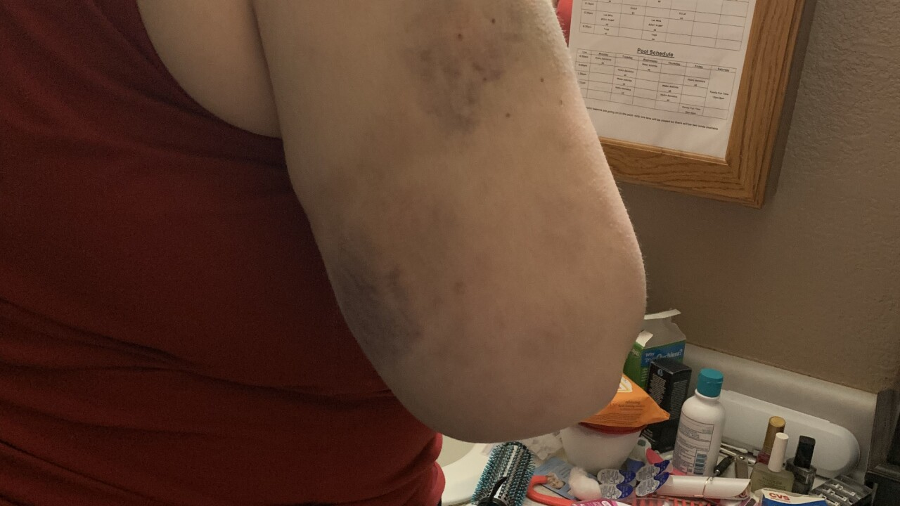 Billings woman feared for her life during recent hail storm