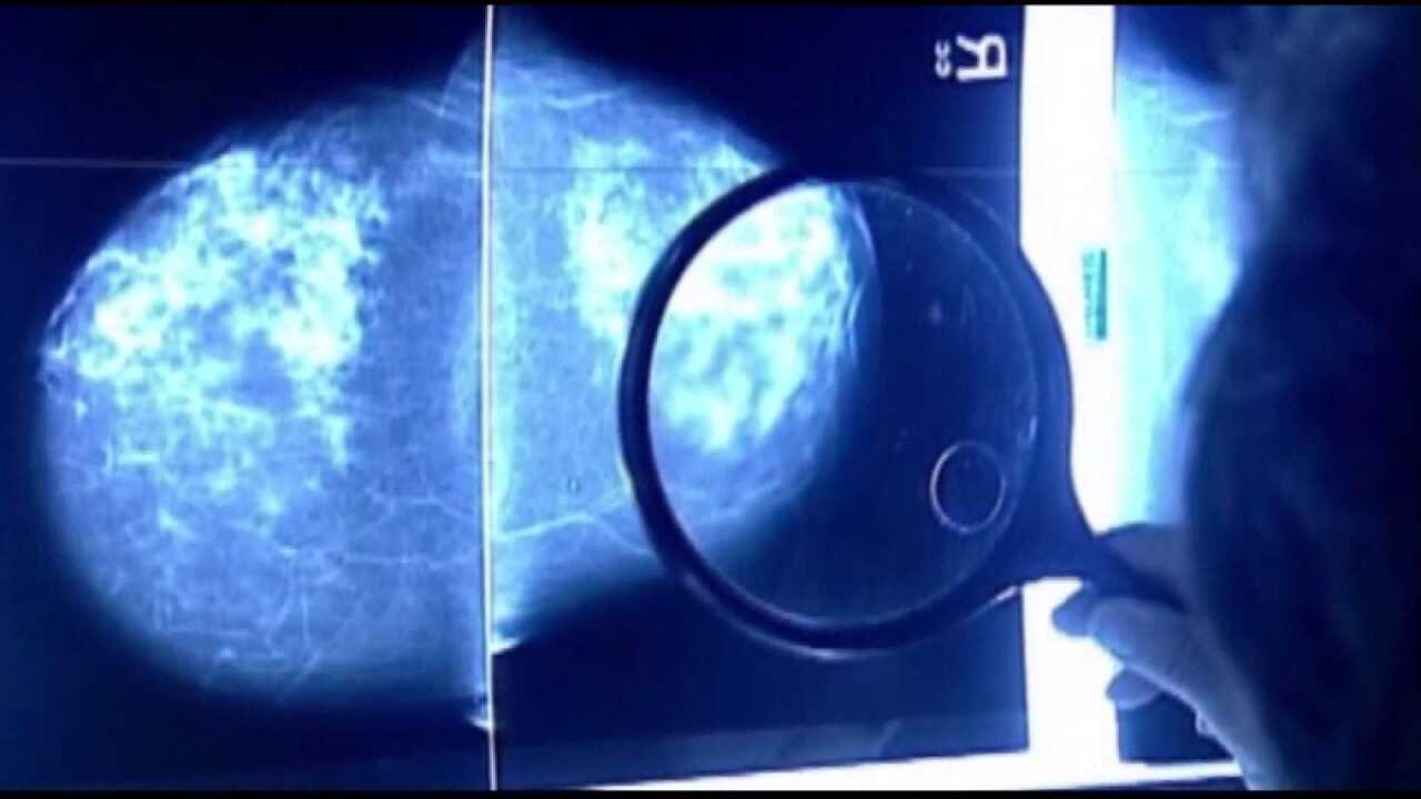 Study: Many women with breast cancer can skip chemo