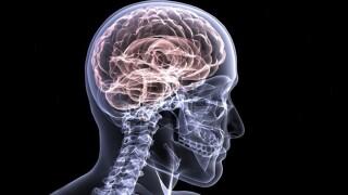 Brain xray generic.jpg