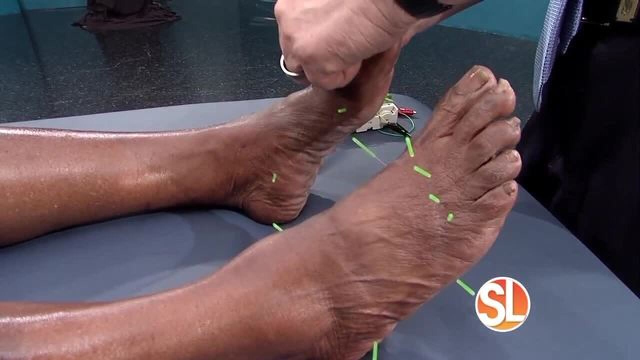 Acupuncture For Neuropathy Of Feet - Acupuncture ...