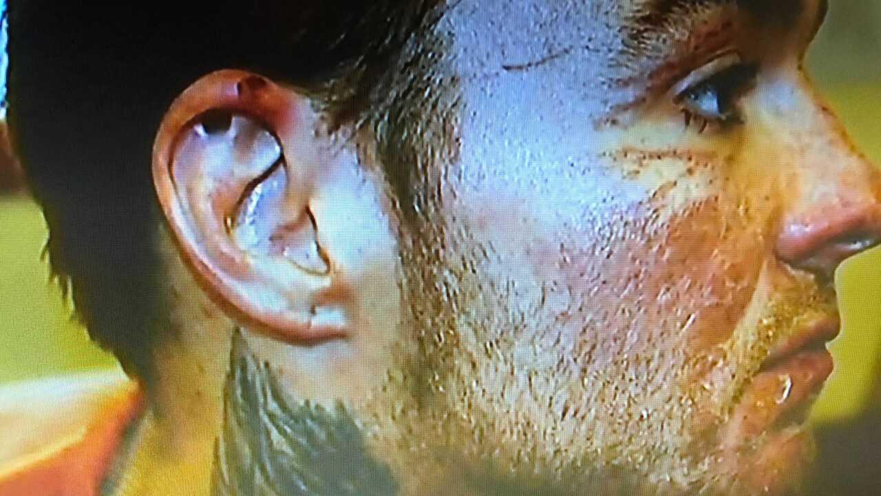kylr yust right face injuries