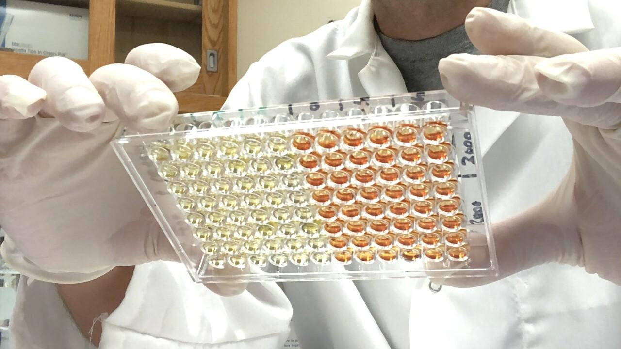 Home Antibody Test