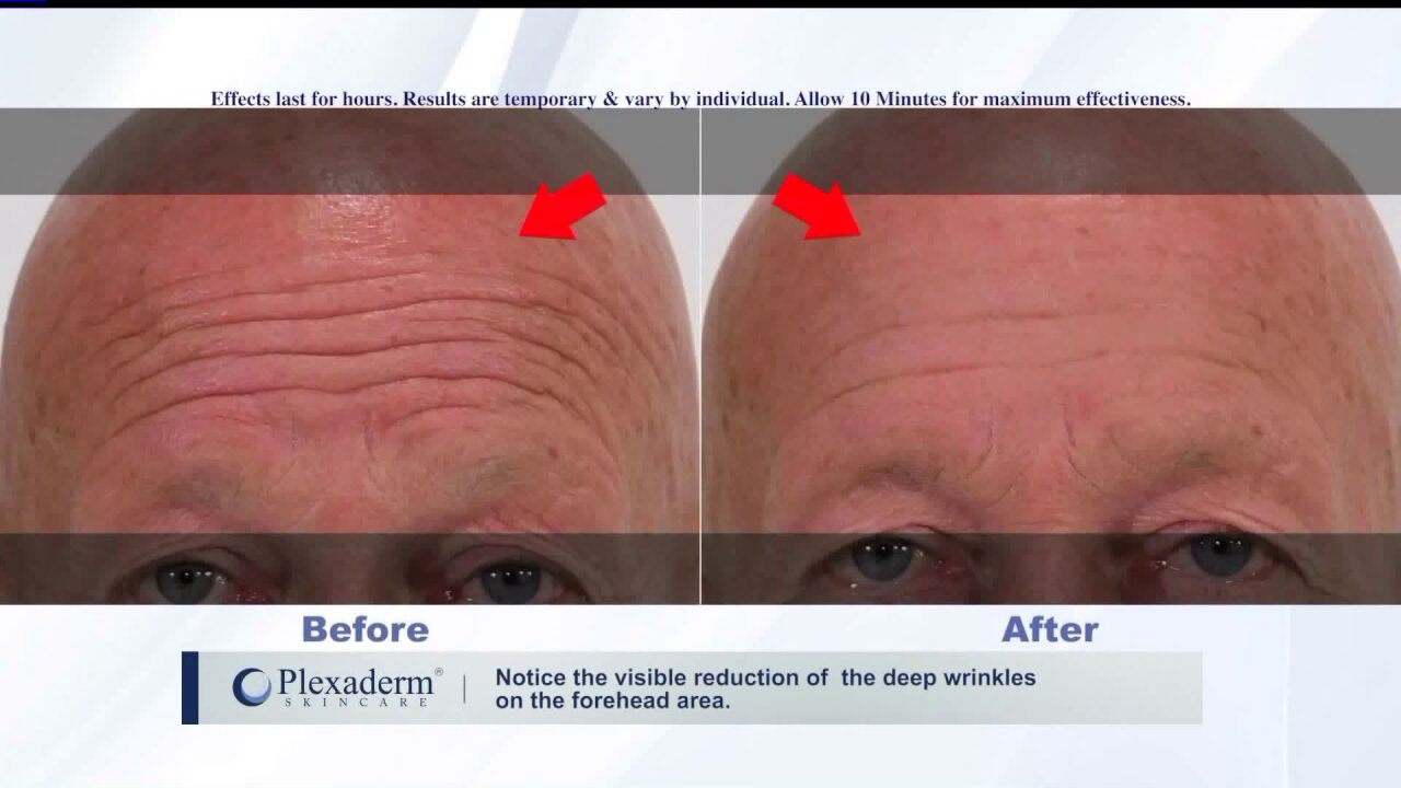 Look and feel younger withPlexaderm