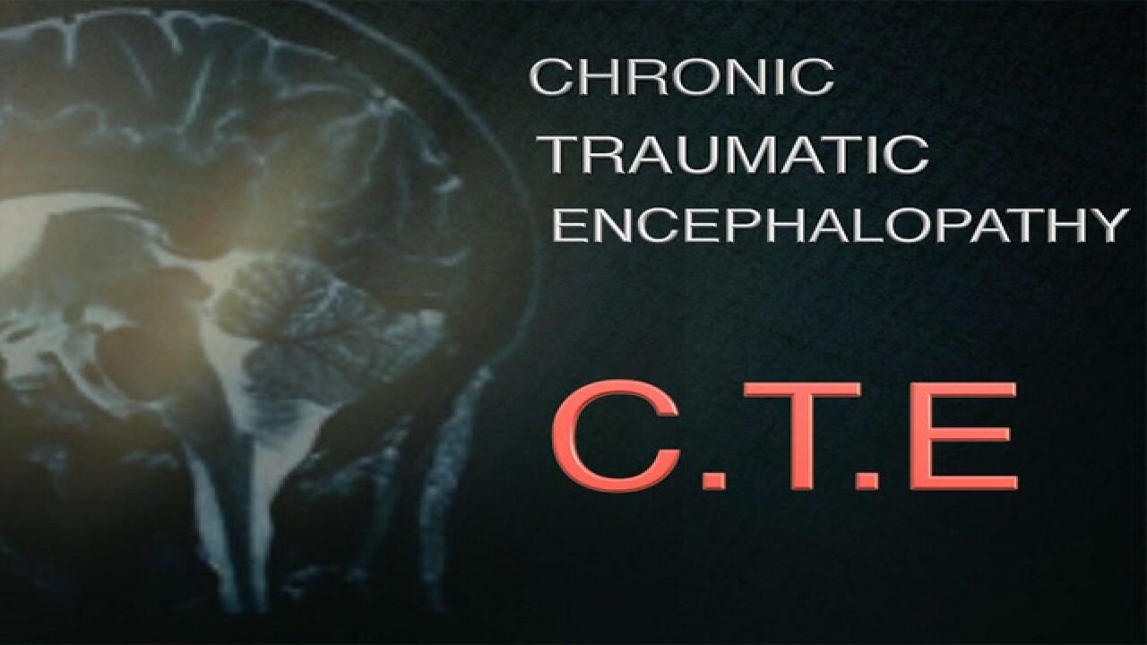 The NFL and marijuana, a cure for brain trauma?