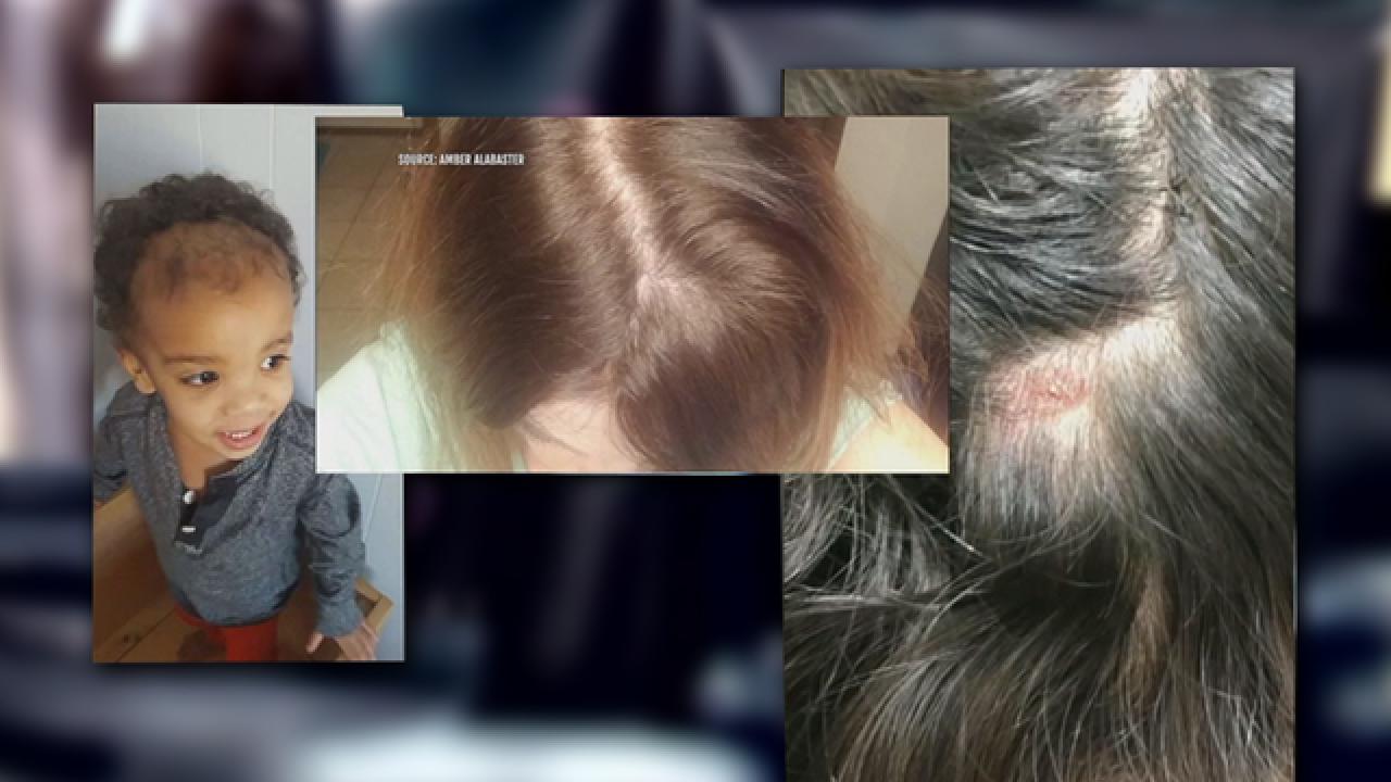 Women claim Monat hair products cause balding