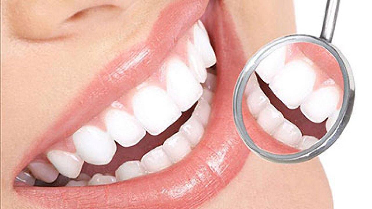 Est-ce que ça vaut le coup? News 3 teste un kit de blanchiment des dents à domicile de 20 minutes