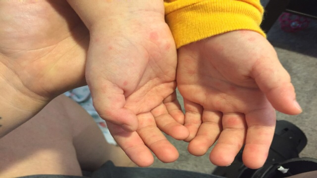 Hand, foot and mouth disease concerns grow in FL