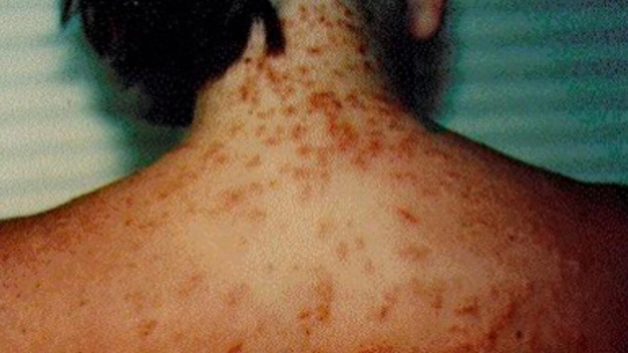 Sea lice reported along Florida beaches