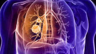 Lung Cancer screenings work to reduce cases of lungcancer