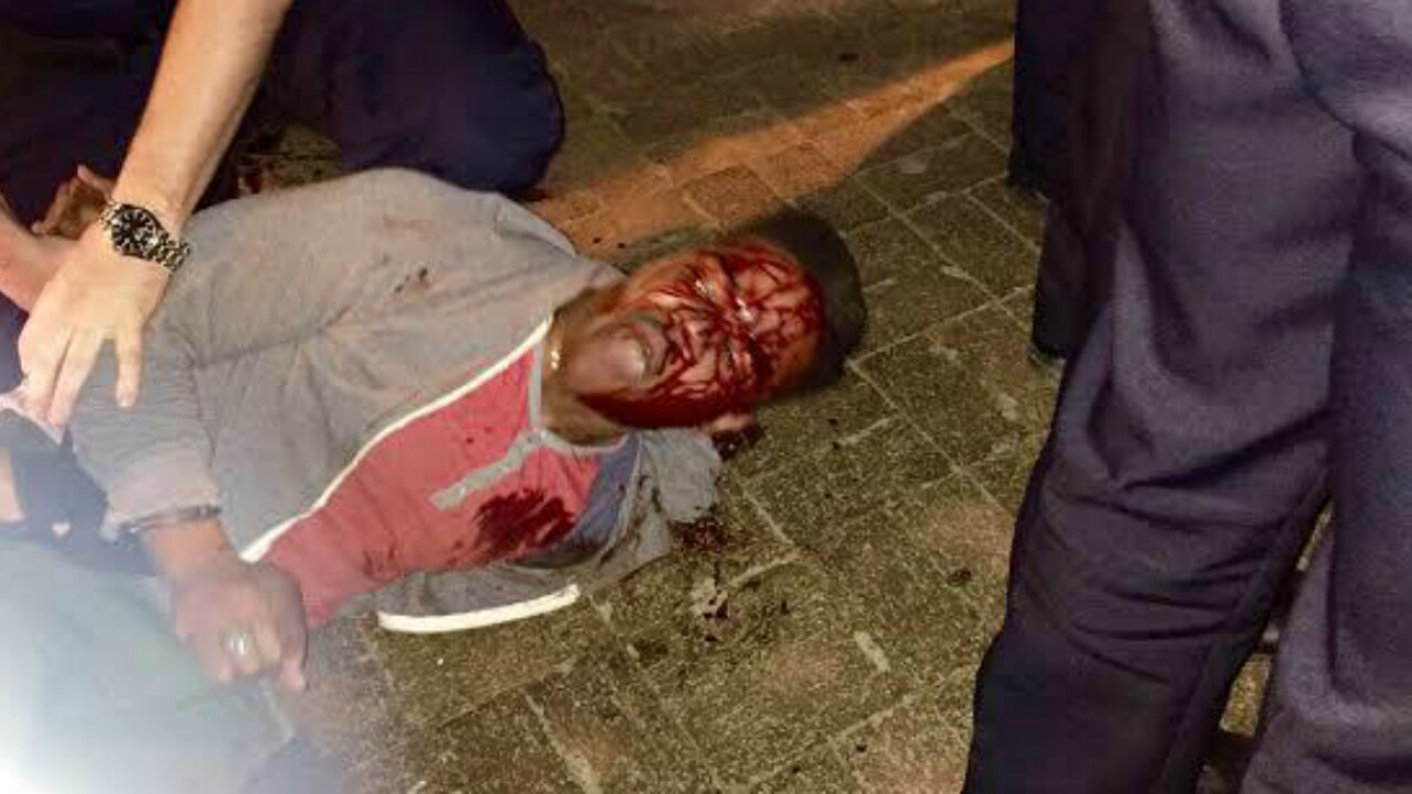 Gov. McAuliffe 'concerned' by reports ABC officers abused UVa. student Martese Johnson