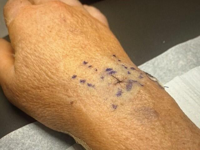 Michele Principe's injured wrist