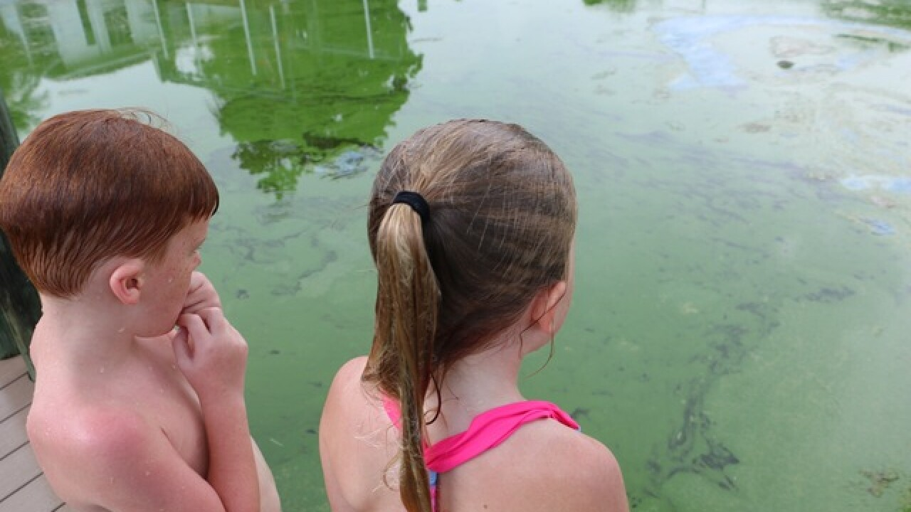 Lee Health not seeing large amounts of medical visits due to algae