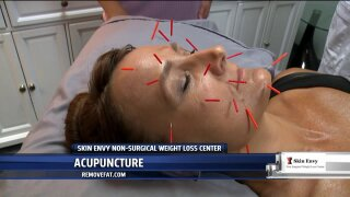 Skin Envy's acupuncture treatments rejuvenate both body and mind
