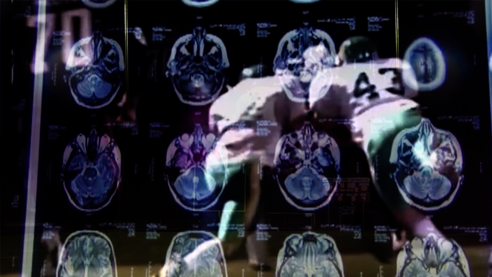 football-concussion.png
