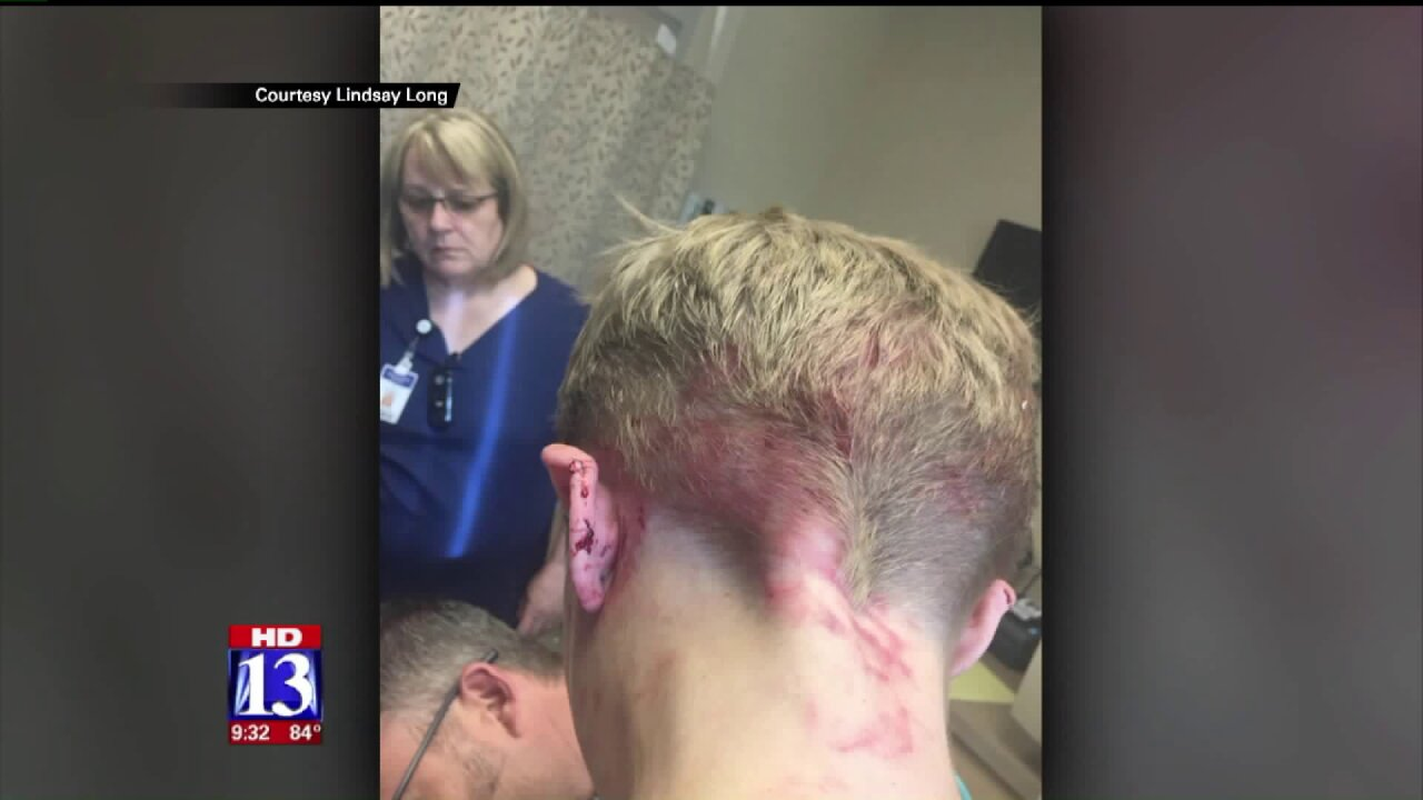 8-year-old boy attacked by 3 dogs after jumping fence into neighbor's yard inClearfield