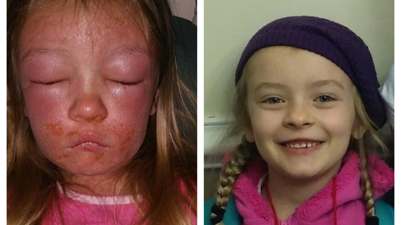 6-year-old develops bacterial skin infection after swimming at HuntingtonBeach