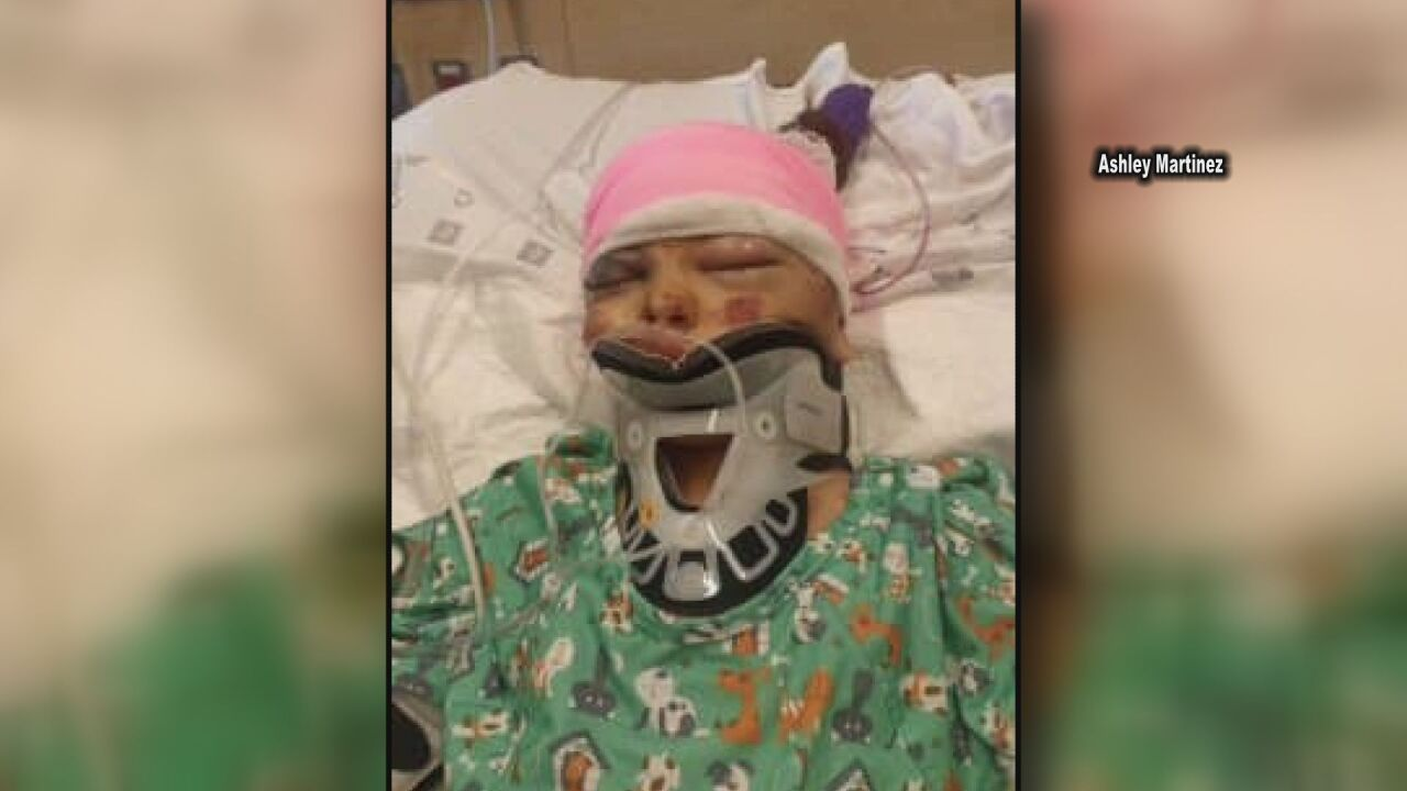 Pueblo girl seriously injured after being hit by vehicle in neighborhood