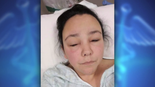 Utah woman suffers severe allergic reaction from hair dye product