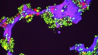 Mimicking Multiple Myeloma