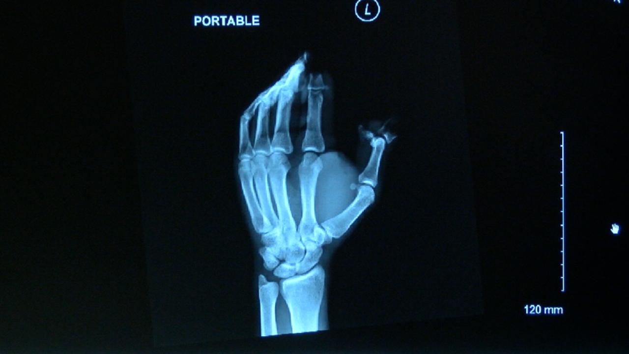 Firework hand x-ray