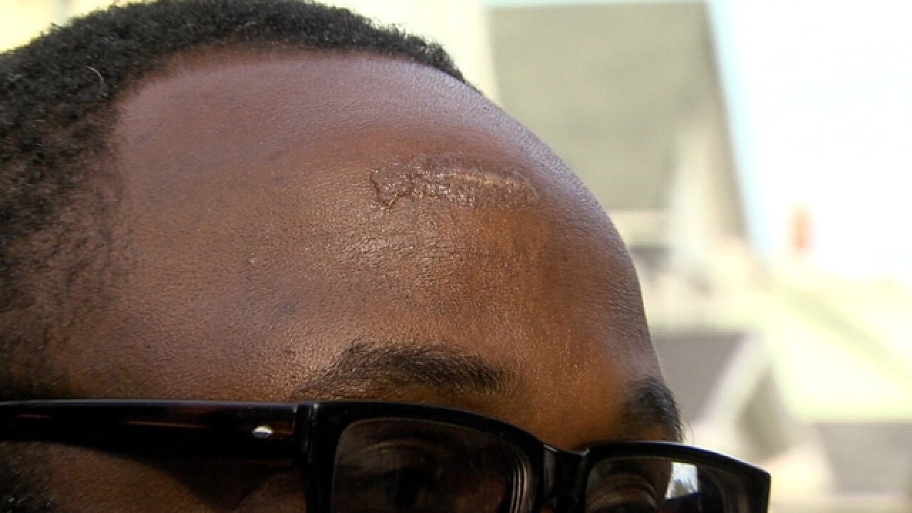 Off-duty officer saves man during hammer attack