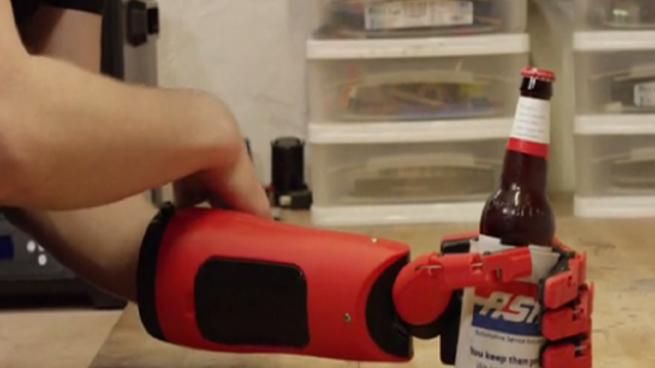 Real life prosthetic hand inspired by video game
