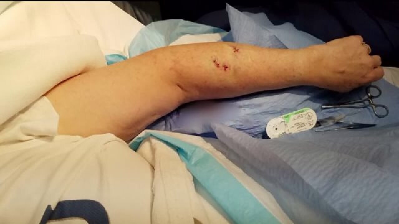 Three women recovering from wounds after dogs attack in CacheCounty