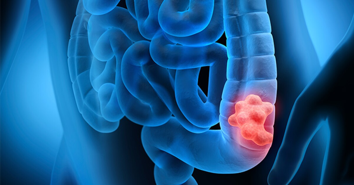 Knowing The Signs Of Colon Cancer