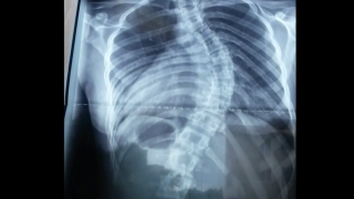 scoliosis spine