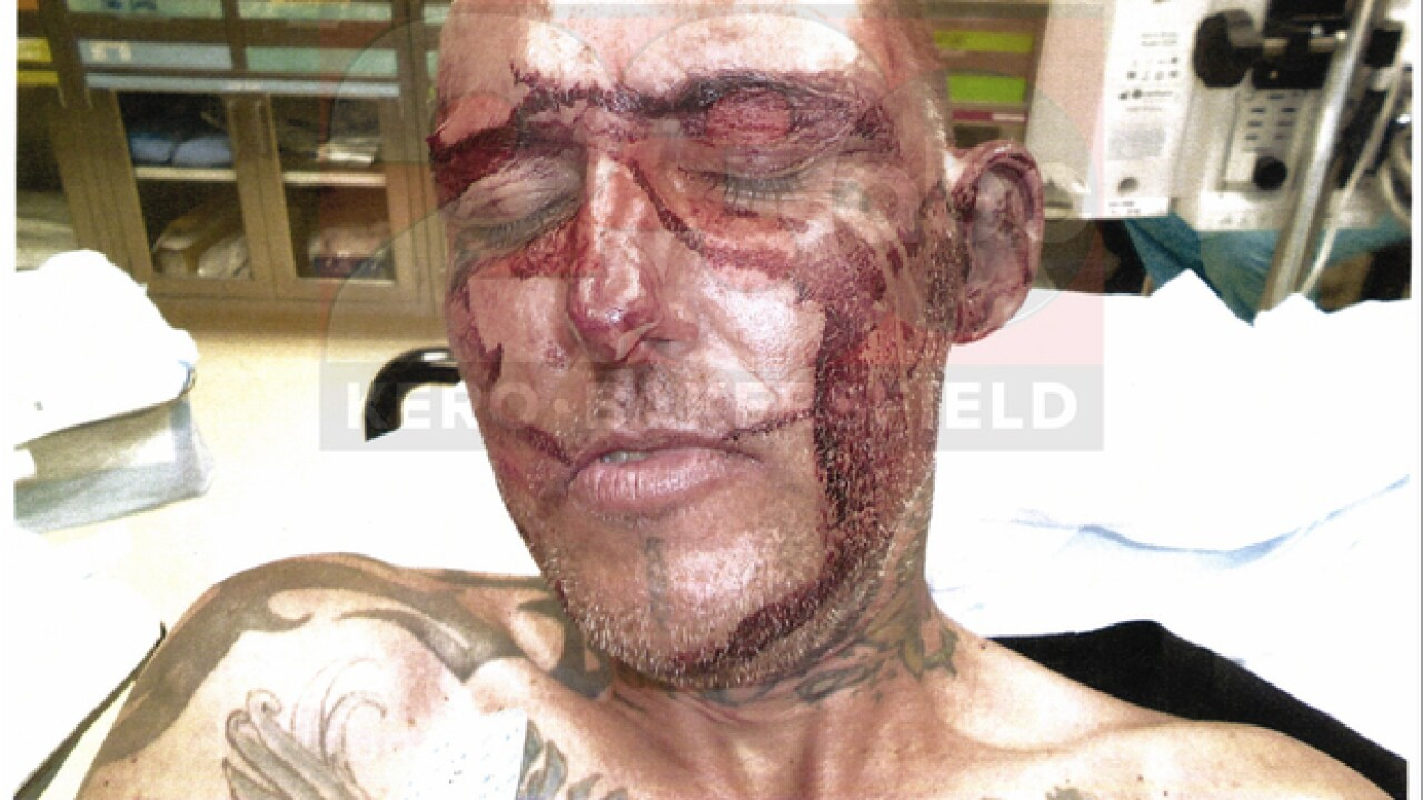 graphic video  jarred allen accuses kcso of excessive