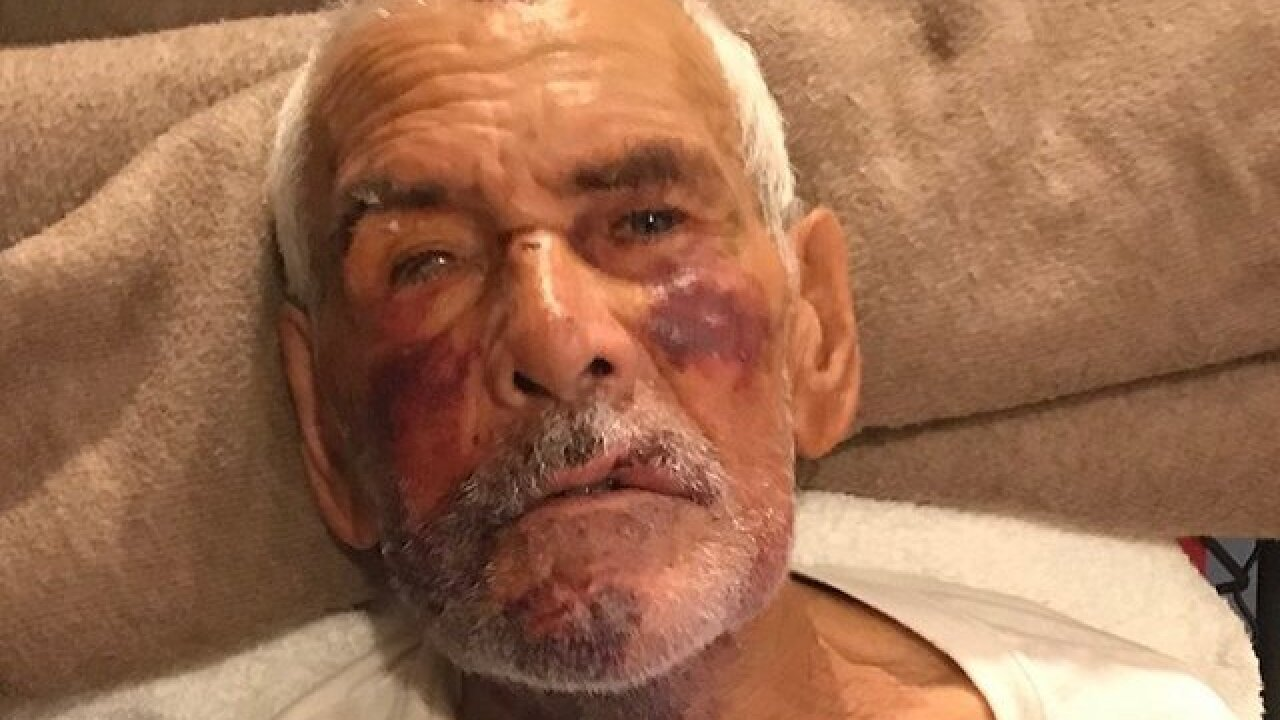 91-year-old man beaten with brick in California, told 'go back to Mexico'