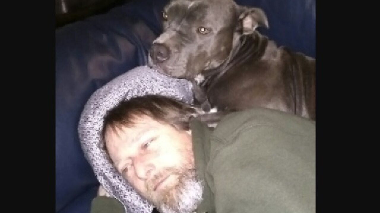 Wis. man loses hands and feet from dog saliva