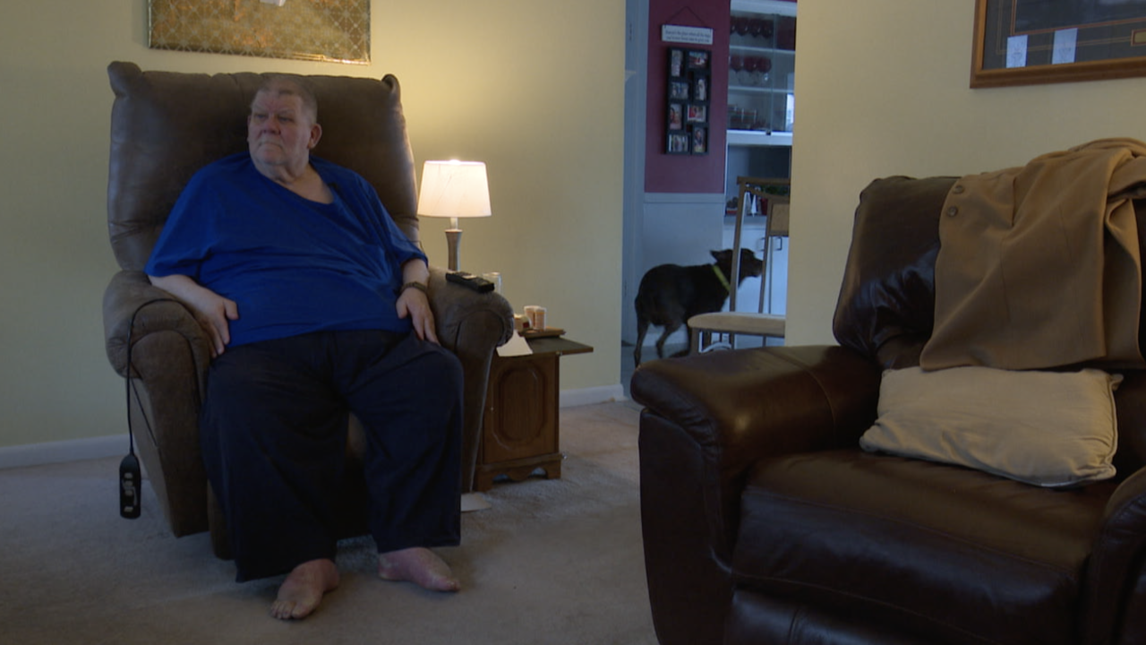 Man recovers from lymphedema, walks by himself for the first time