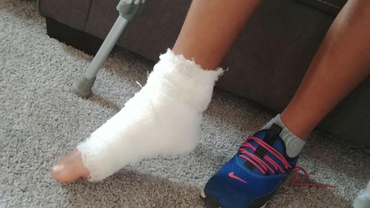 Akron boy shot in ankle