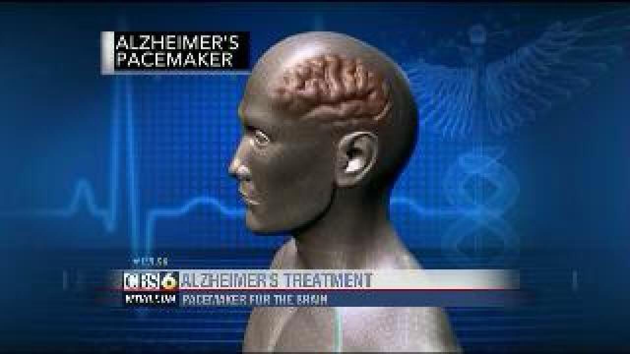 Tests could lead to Alzheimer's Disease breakthrough