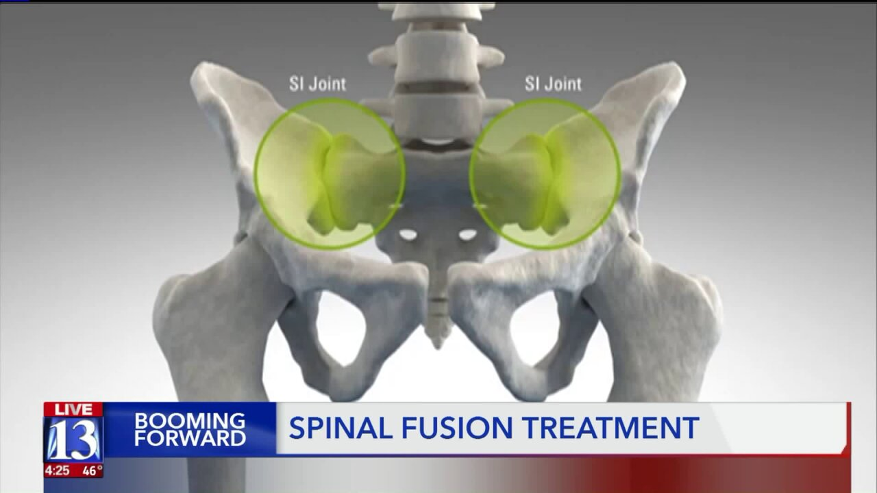 Booming Forward: New spine treatment helps those with backpain
