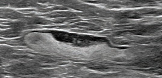 55-year-old woman who underwent screening mammogram 7 days after first COVID-19 vaccination dose