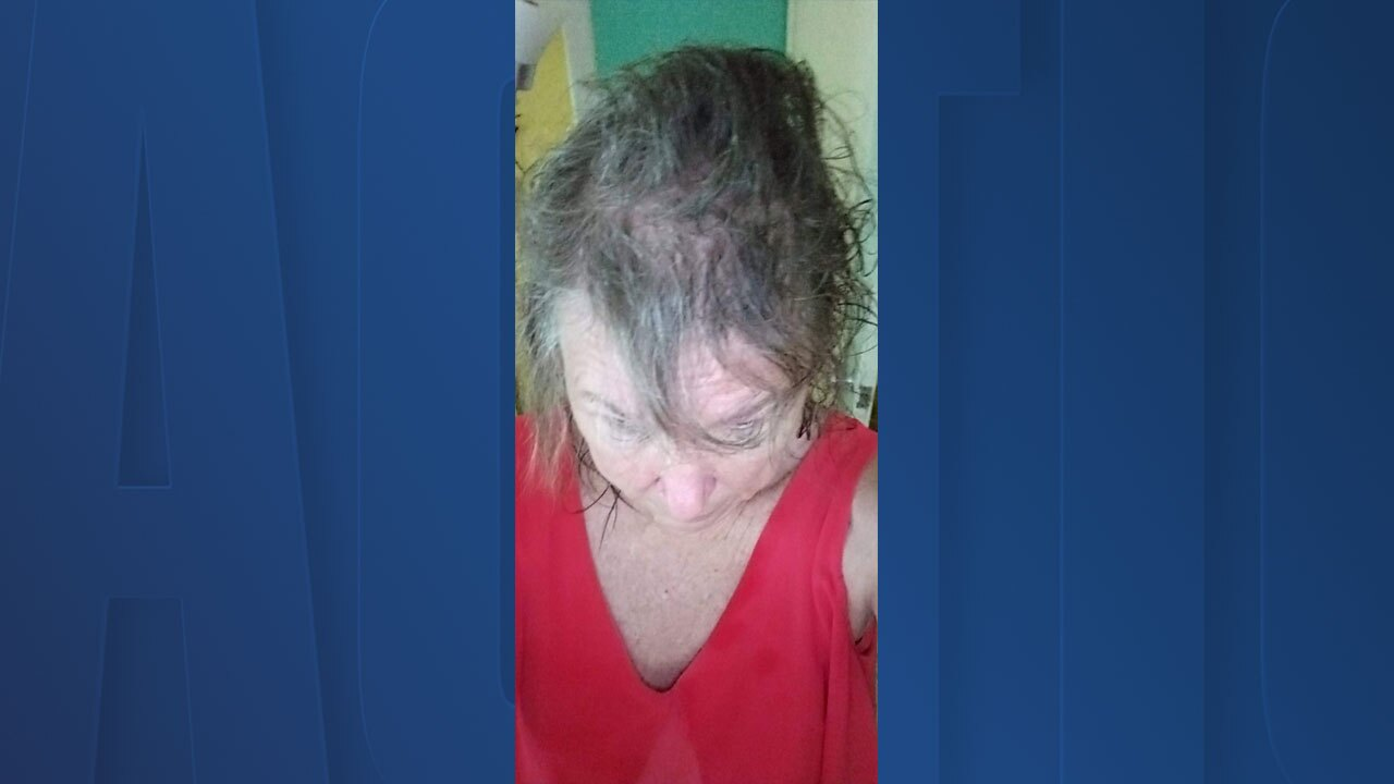 hair-loss1.jpg