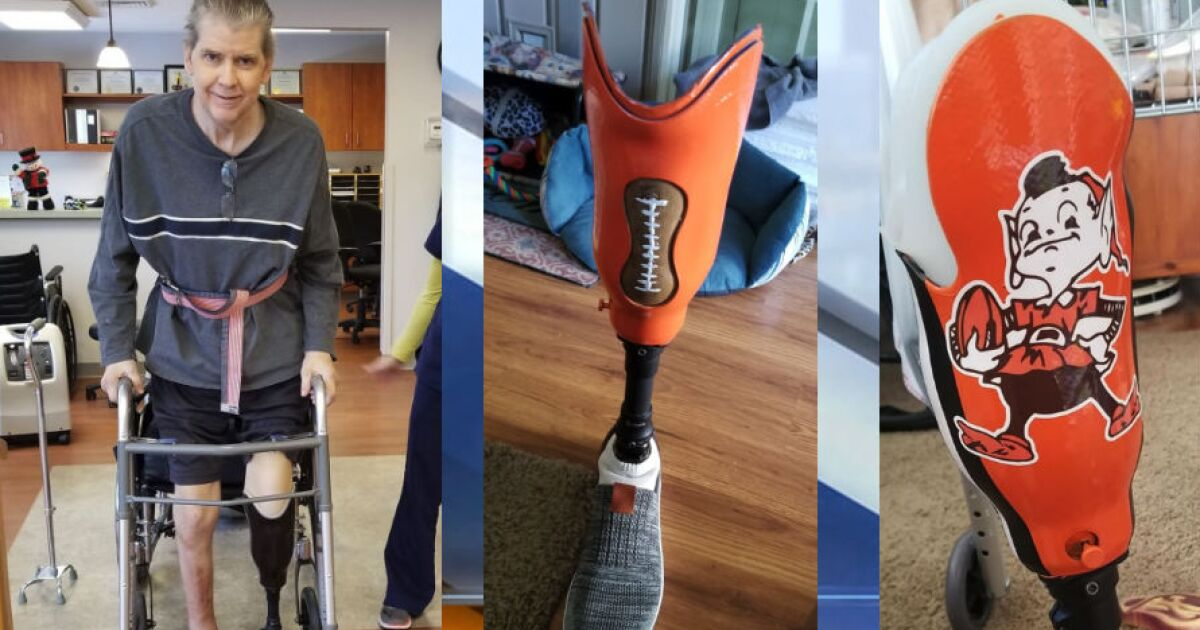 Browns fan makes most of situation with customized prosthetic leg