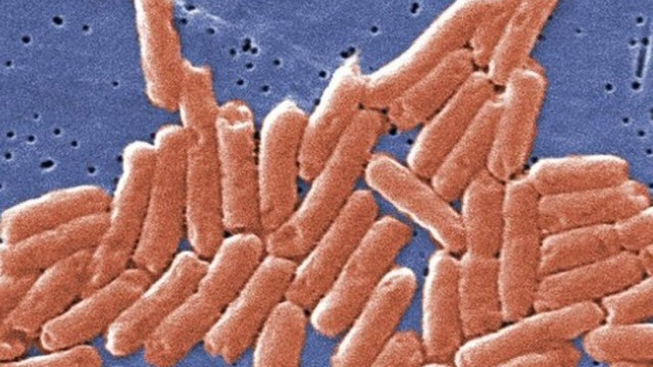 21 cases of salmonella linked to recalled beef, Arizona health officials say