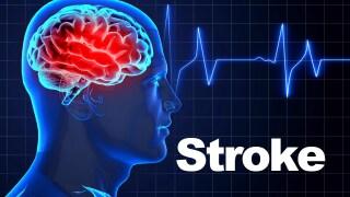 Free stroke screenings Saturday in Lafayette