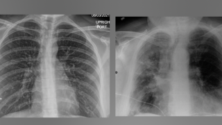 COVID lung X-rays show 'remarkable' impact of vaccines