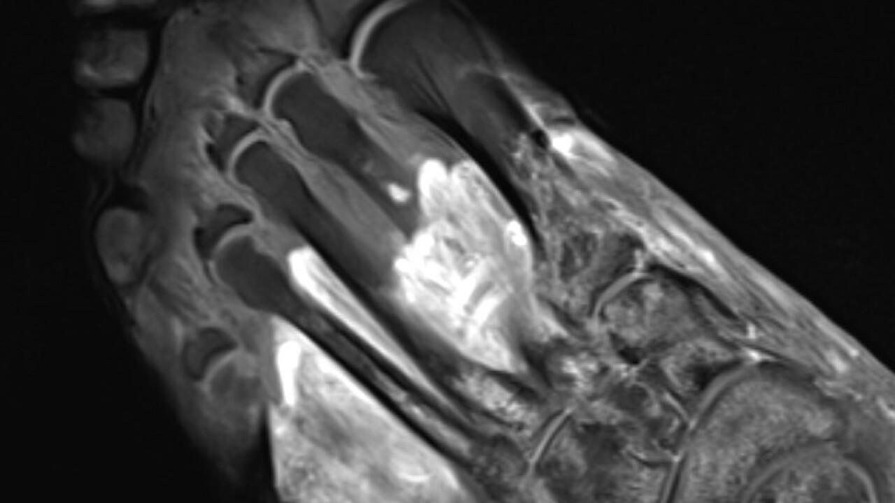 COVID toes MRI