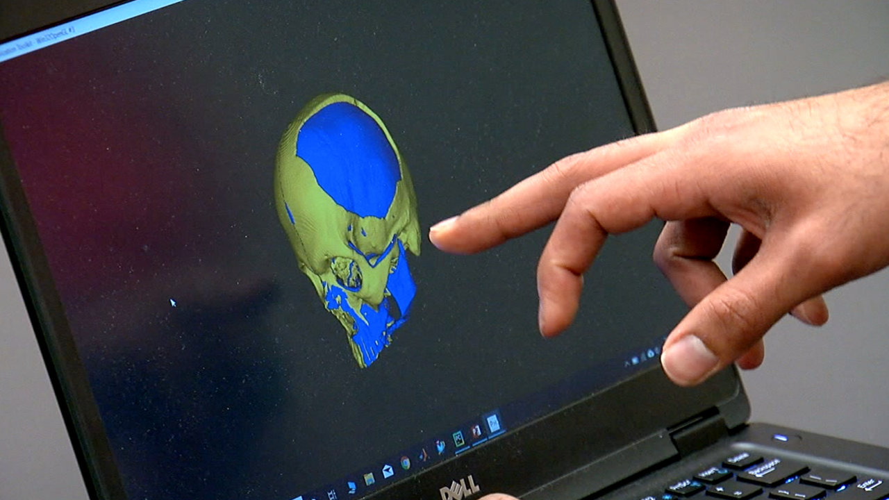 WCPO skull implant.png