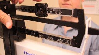 Obesity increases in U.S women, studyfinds