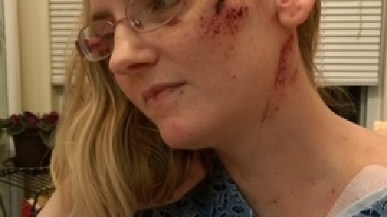 Mom warns drivers after being impaled by deer antler